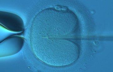 Fecundació in vitro a Barcelona